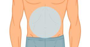Depilación láser abdomen en Rosario