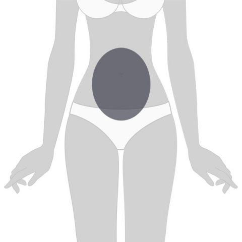 Velashape 2 Abdomen
