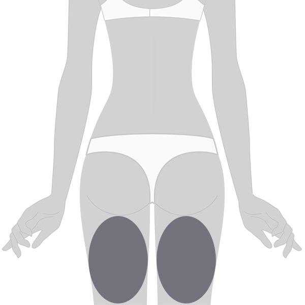 Velashape posterior de muslos